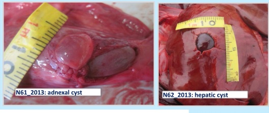 Seal Adnexal and Hepatic Cyst Stimmelmayra et. al. Northslope.org