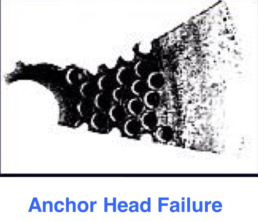 Anchor head failure, Naus, 2012, p. 18