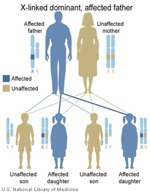 x linked dominant defect-trait from father NIH